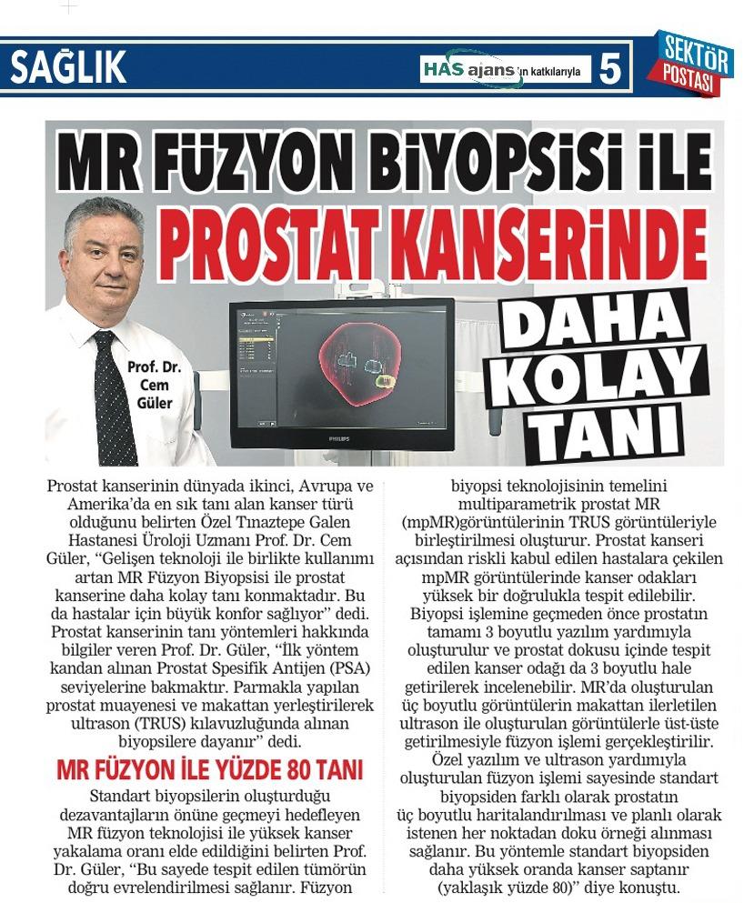 Mr Füzyon Biyopsisi ile prostat kanserinde daha kolay tanı