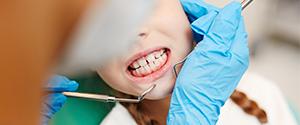 Diş sıkma neden olur ?
