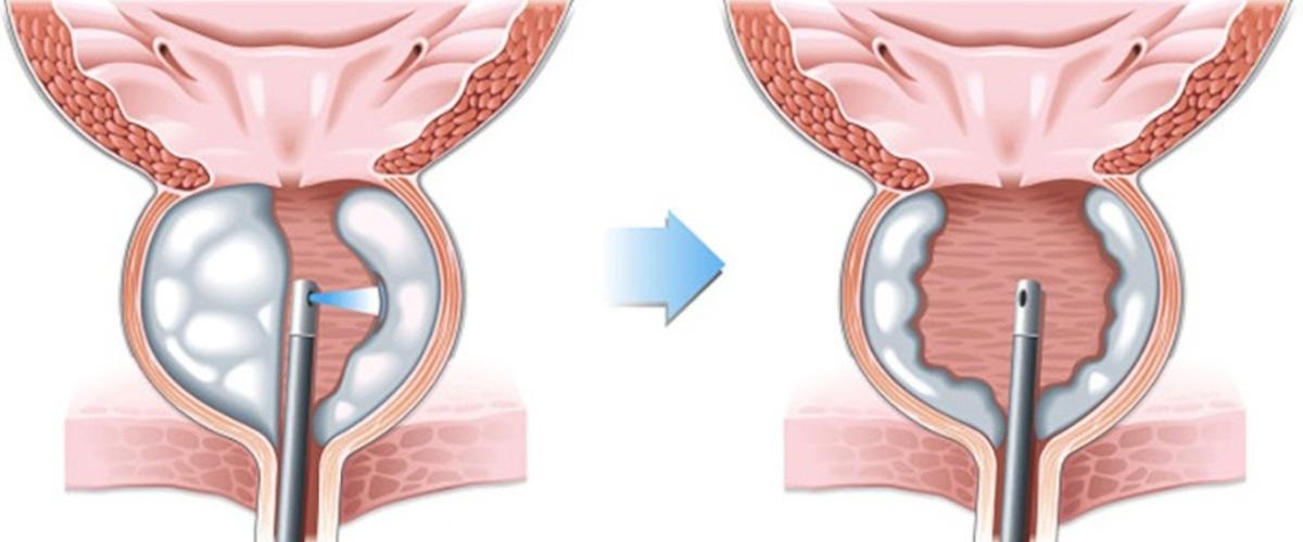 Holmium Laser Prostate Surgery (HoLEP)