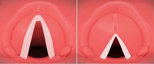 Ses İnceltme ve Kalınlaştırma Ameliyatları