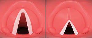 Voice Feminization and Masculinization Surgery